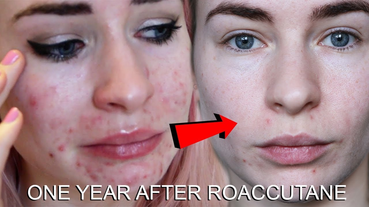 One Year After Roaccutane My Skin Now Youtube