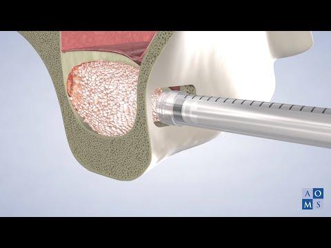 Instrucciones Post-Operatorias: Elevacion del Seno | Amarillo Oral & Maxillofacial Surgery