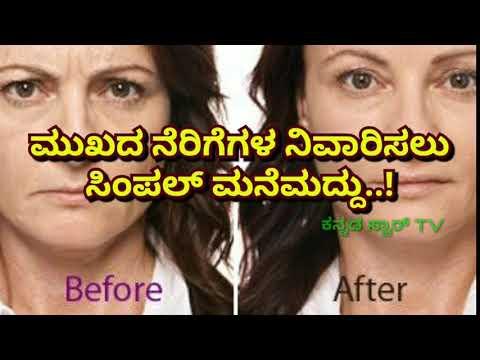 ಮುಖದ ನೆರಿಗೆಗಳ ನಿವಾರಿಸಲು ಸಿಂಪಲ್ ಮನೆಮದ್ದು..! Kannada beauty simple tips