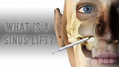 What is a sinus lift?