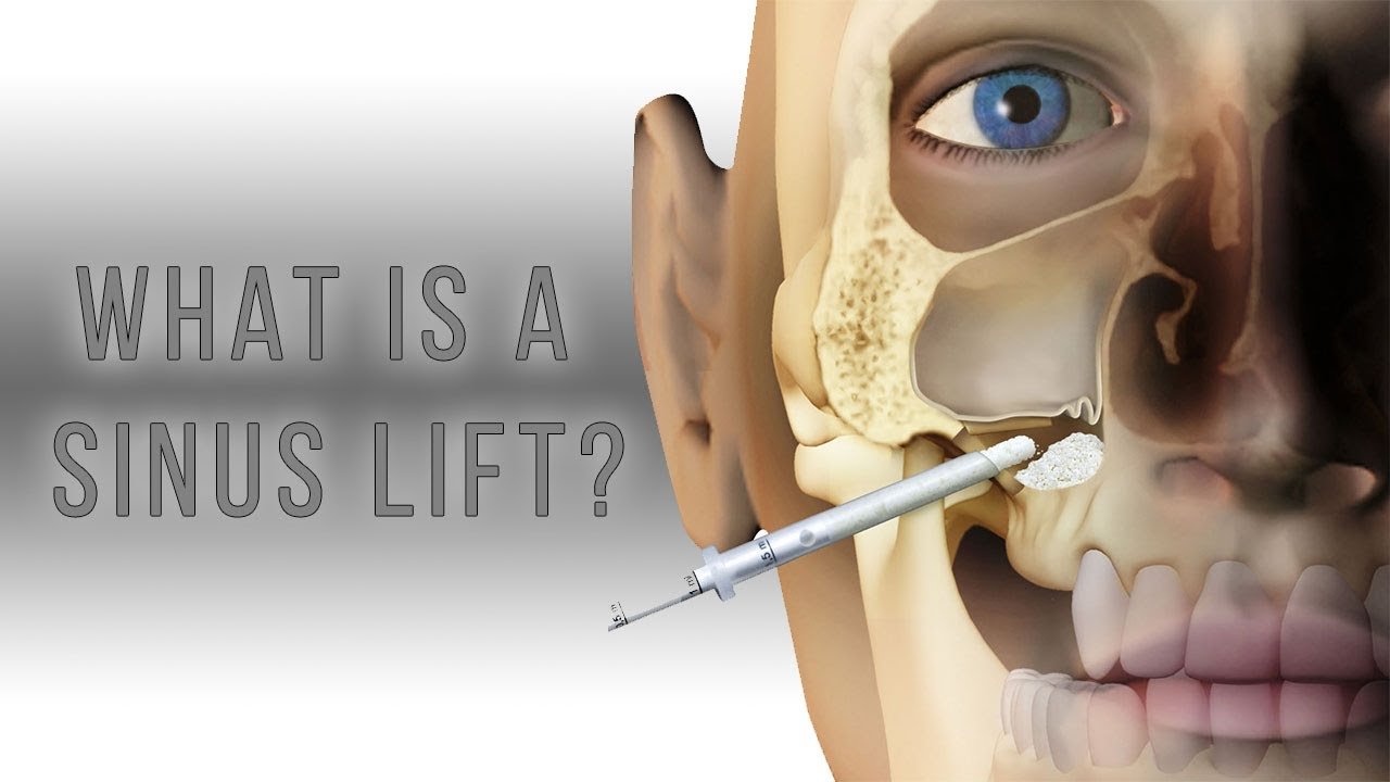Sinus Lift Surgery for Teeth Implants: Procedure, Costs, and