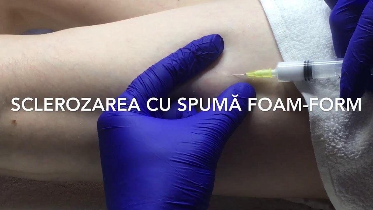 sclerozarea cu vene varicoase