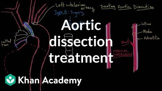 Aortic dissection treatment | Circulatory System and Disease | NCLEX-RN | Khan Academy