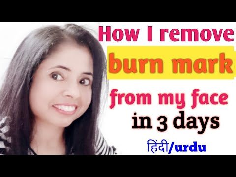 How To Remove Burn Marks From Face At