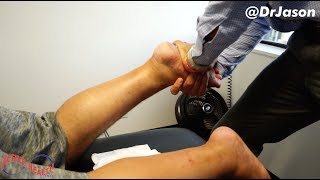 Dr. Jason - COLOMBIAN MAN TRAVELS FROM TEXAS FOR (*BIG & LOUD*) FOOT ALIGNMENT