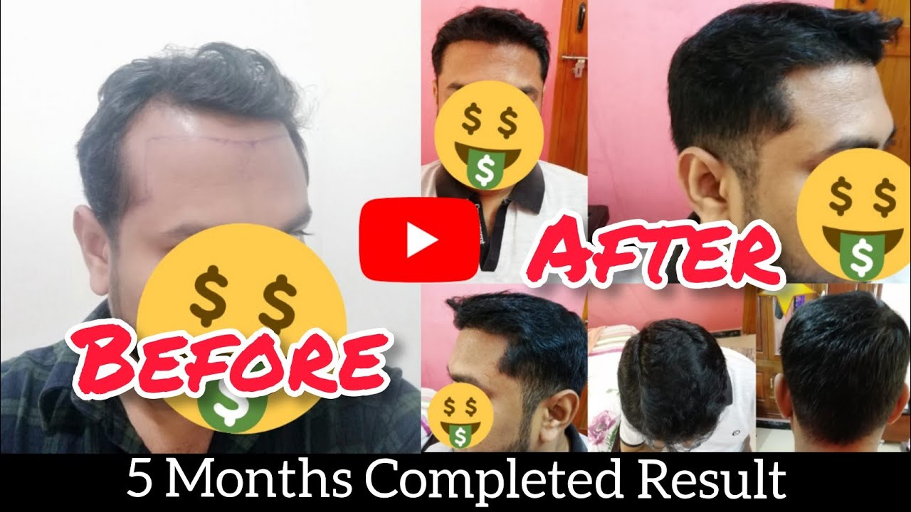 HSN Case Study-2 High Density Result|Best Hair Transplant in india|FUE Tamil Hair Transplant|தமிழன்