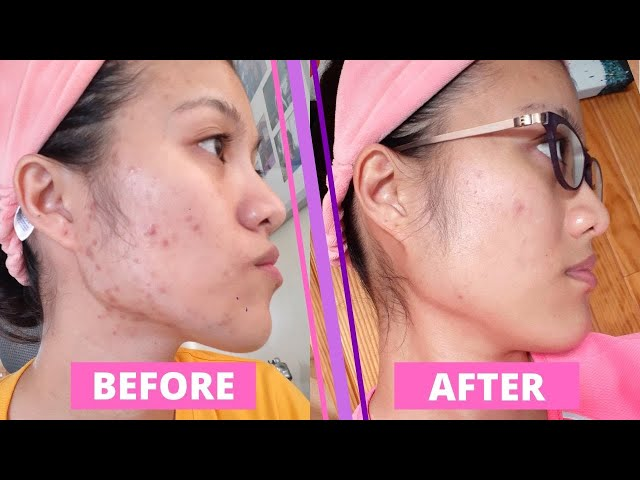 How I got rid of my Hyperpigmentation, Dark Spots and Acne!