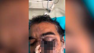 Инфекция «съедает» человека на глазах. Люди в Индии плачут от беспомощности