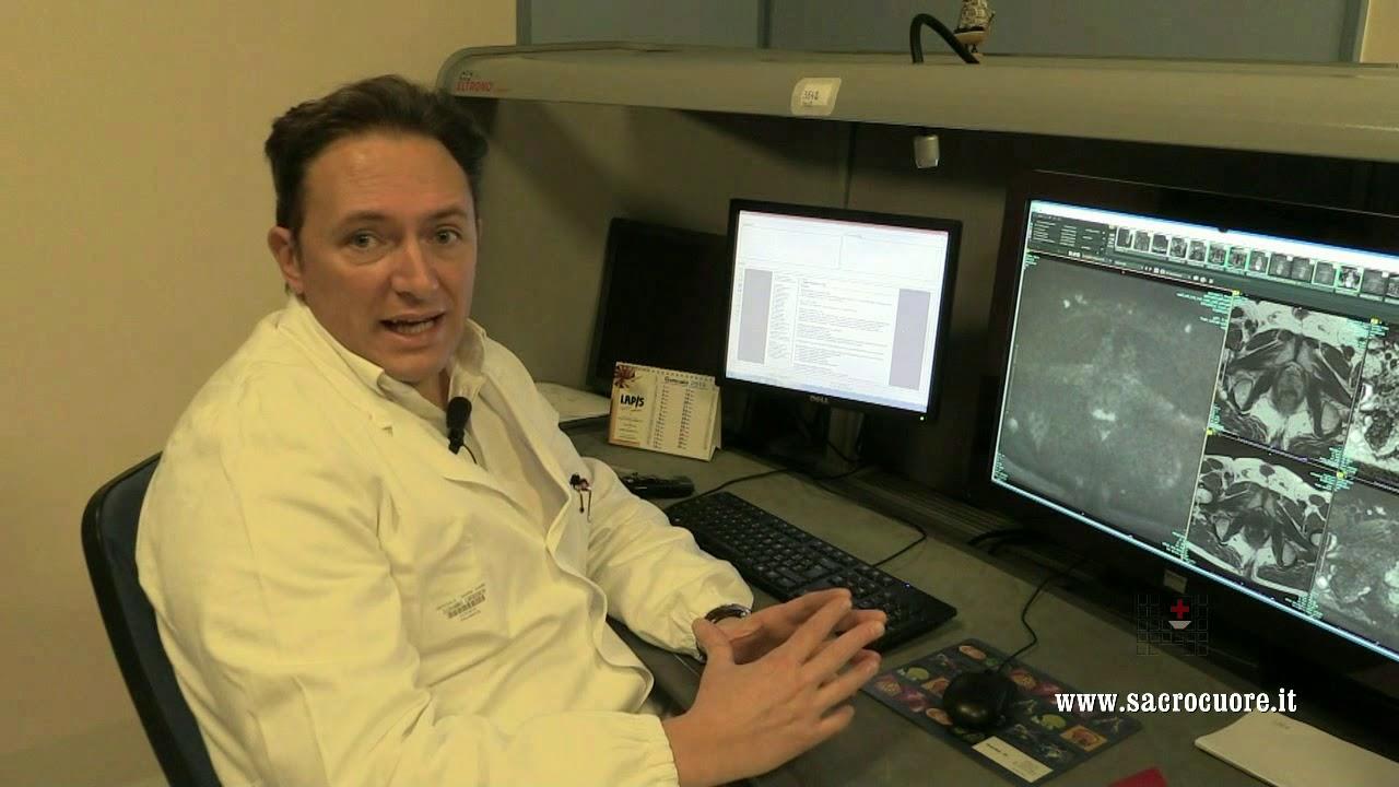 risonanza magnetica alla prostata procedimento video gratis