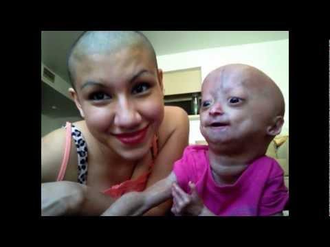 Twins - Adalia Rose (Official)