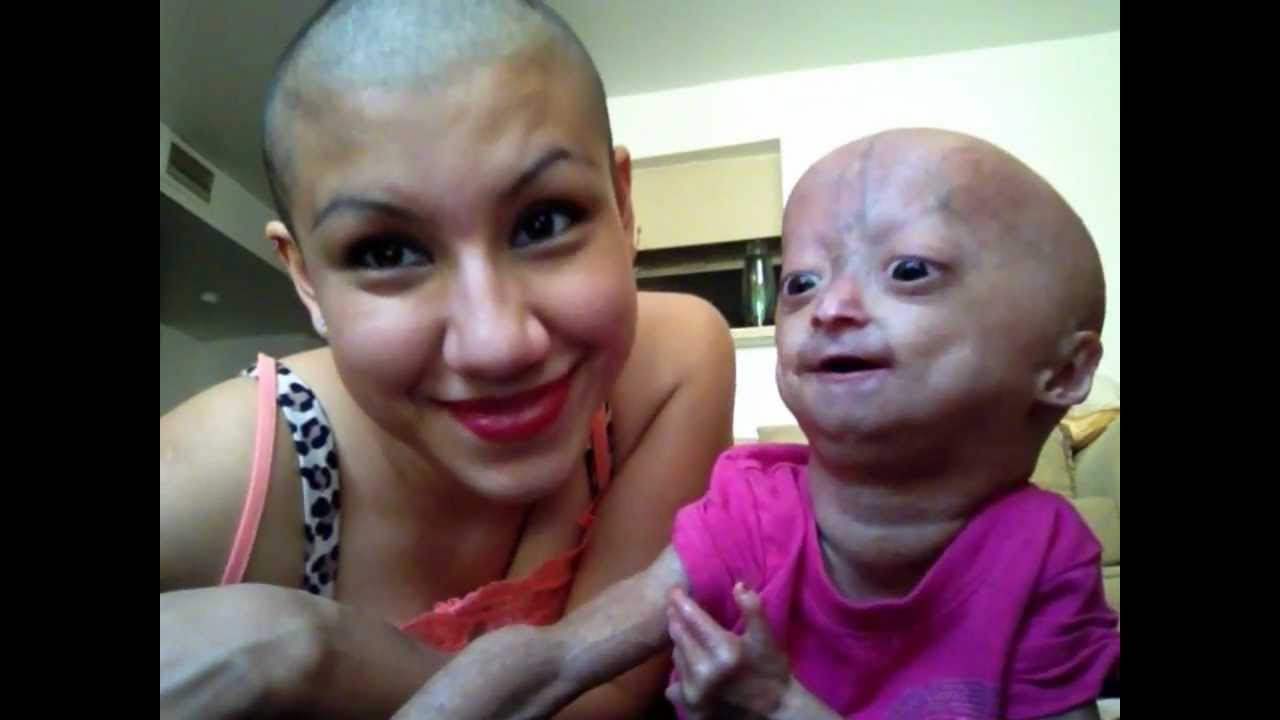 Twins Adalia Rose Official Youtube