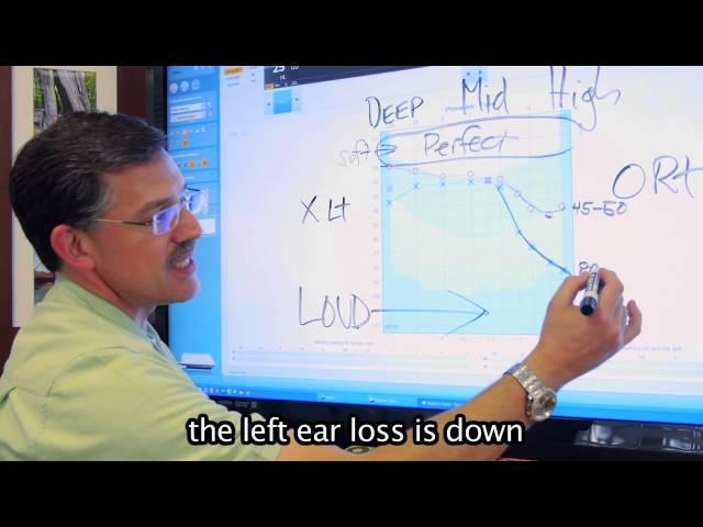 How to read an Audiogram - Better Hearing Center of Austin
