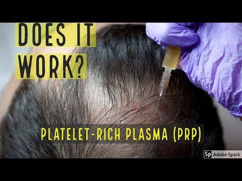 PLATELET-RICH PLASMA (PRP) HAIR LOSS TREATMENT - DOES IT WORK?