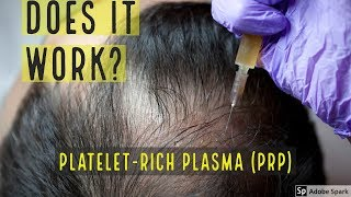 PLATELET-RICH PLASMA (PRP) HAIR LOSS TREATMENT - DOES IT WORK?