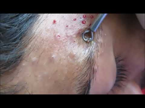 Blackheads On Ala Of Nose Extraction