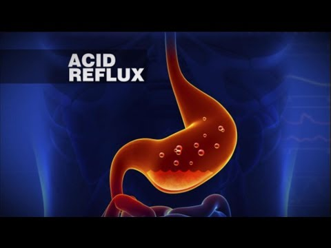 how to stop reflux naturally