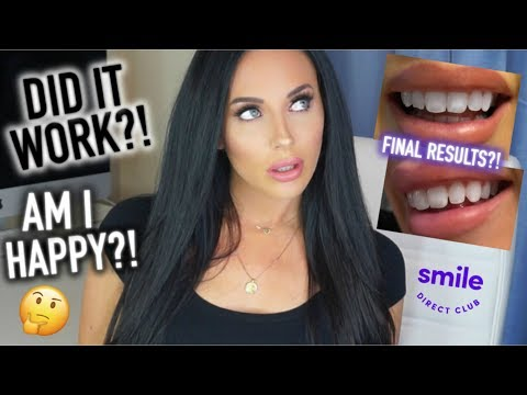 Smile Direct Club | FINAL RESULTS + END OF TREATMENT UPDATE!