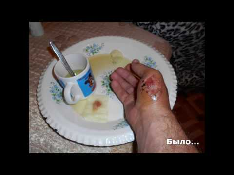 Как заживает открытая рана. Моя рана от болгарки.