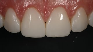 Resin Veneering and Diastema Closure with Dr. Dennis Hartlieb