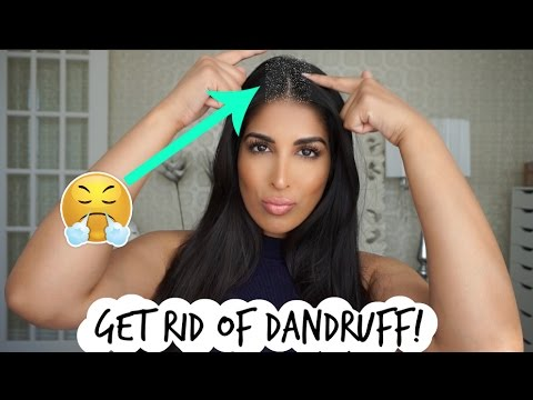 HAIR HACK! GET RID OF DANDRUFF FAST!