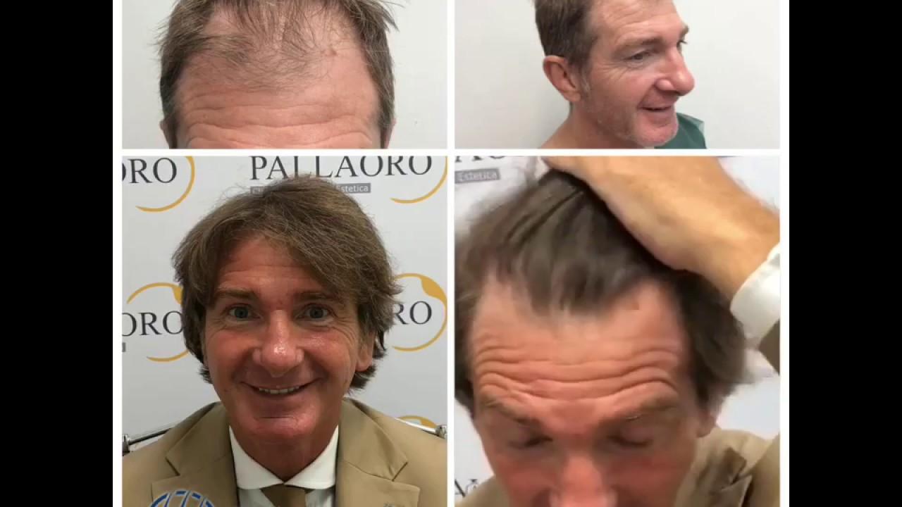 Trapianto capelli Micro FUE, risultato entusiasmante - YouTube