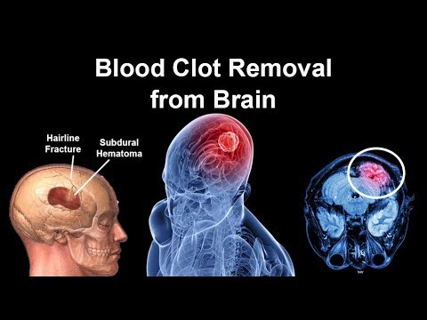 Blood Clot Removal from Brain | Evacuation of Intracerebral Hemorrhage