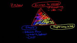 Thromboembolic Disease: Deep Vein Thrombosis and Pulmonary Embolism