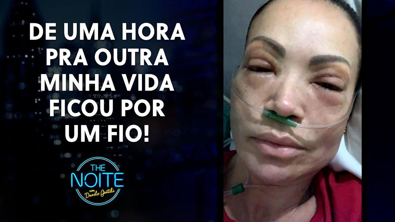 Cantora Solange Almeida quase morreu | The Noite (28/07/21)