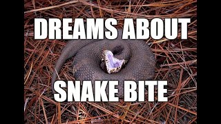 Dreams About Snake Bite - Meanings Interpretations