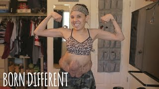 I'm Finally Ready To Show The World My Tumours | BORN DIFFERENT