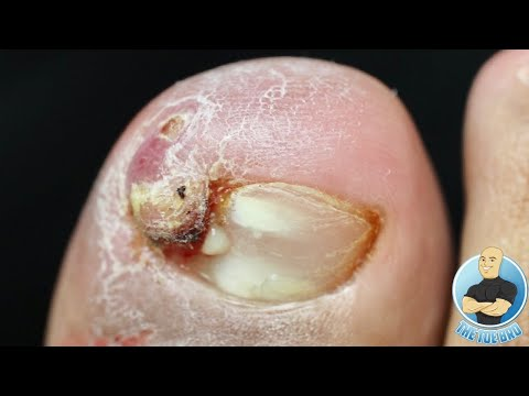 MOST SATISFYING INGROWN TOENAIL REMOVAL ON THE INTERNET??? ***UNBELIEVABLE NAIL SPIKE***
