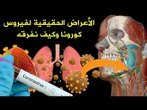 هذا ما يفعله فيروس الصين في جسم الانسان !! اعراض مرض الصين الجديد