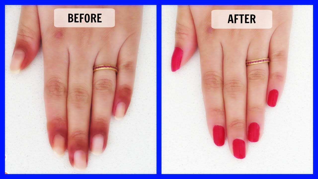 How to get rid of dark skin around the nails in just 7 Days - YouTube