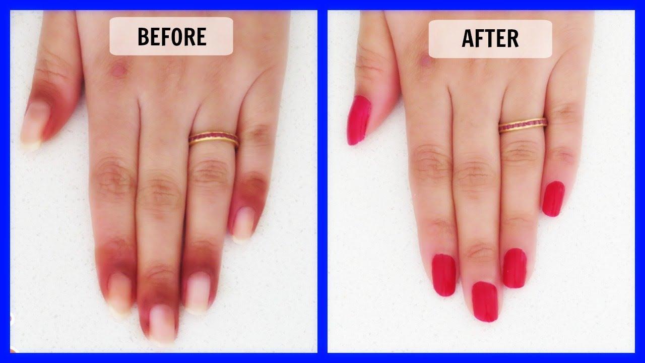 Hands Turning Black Skin