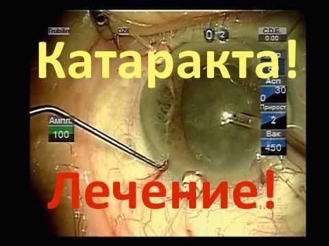 Катаракта (Cataracta) лечение, симптомы, причины