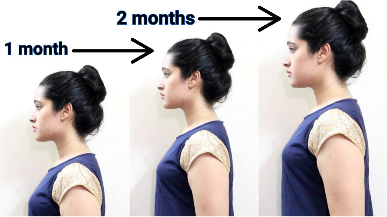 Weight loss programs top 10 image 9