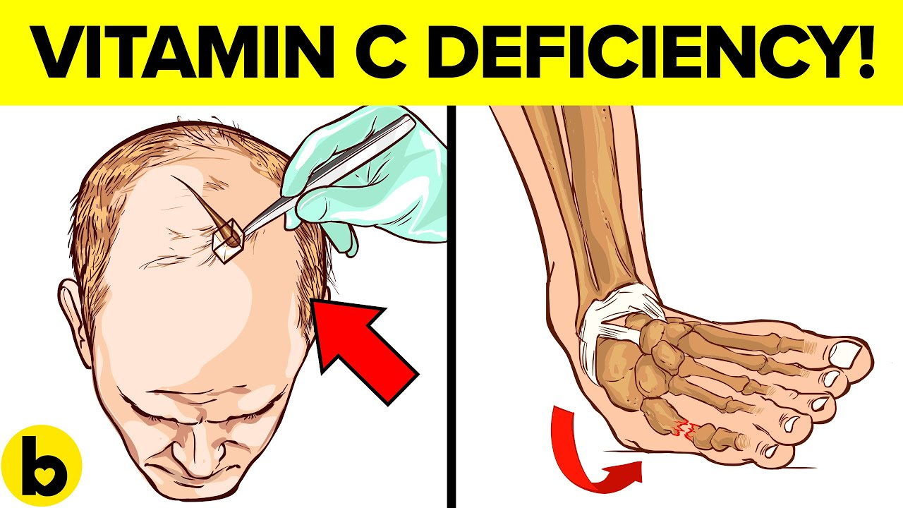 Vitamin C deficiency Symptoms that should never be ignored