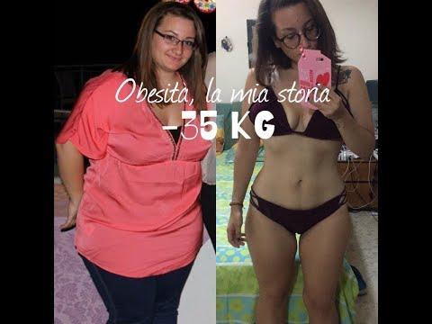-35 Kg. Obesità: La Mia Storia ♥️