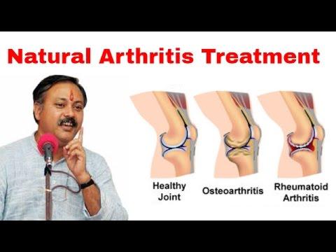 आर्थराइटिस का उपचार - Arthritis Treatment By Rajiv Dixit