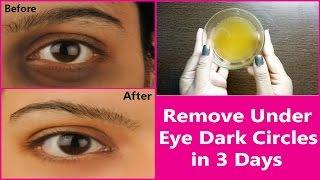 Remove Under Eye Dark Circles in 3 Days | 100% Effective Natural  Remedy for  Under Eye Dark Circles