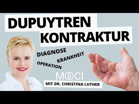 dupuytren kontraktur 10 fragen an dr christina luther mooci