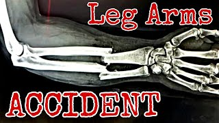 "Leg Arms ""Arm"" Crushed