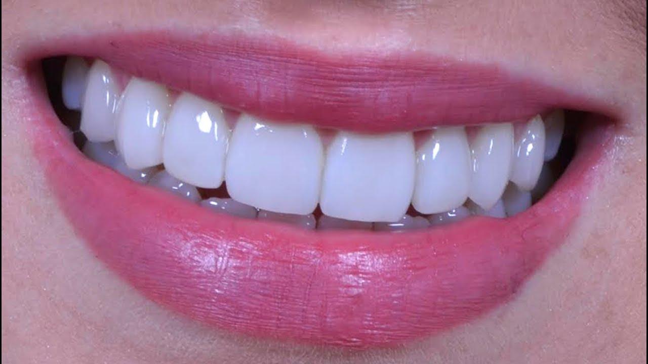 d587dcbc884d Qual a Melhor e Mais Recomendada Prótese Dentária de Silicone ...