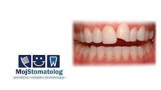 Kako sanirati okrnjen zub?