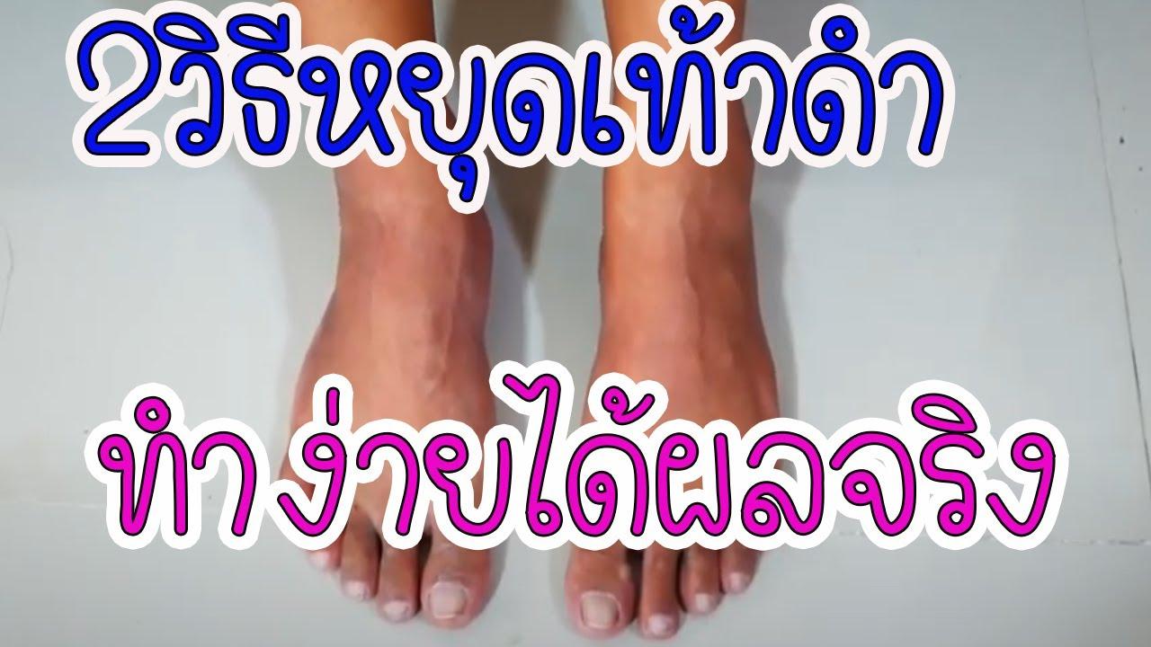 สุดทึ่ง!!!แชร์ 2วิธีหยุดเท้าดำแบบง่ายๆl เท้าดําทําไงให้ขาวเห็นผลตั้งแต่ครั้งแรก l Easy home