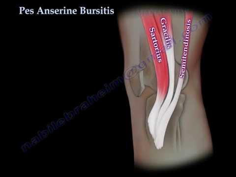 Pes Anserine Bursitis , knee pain  - Everything You Need To Know - Dr. Nabil Ebraheim