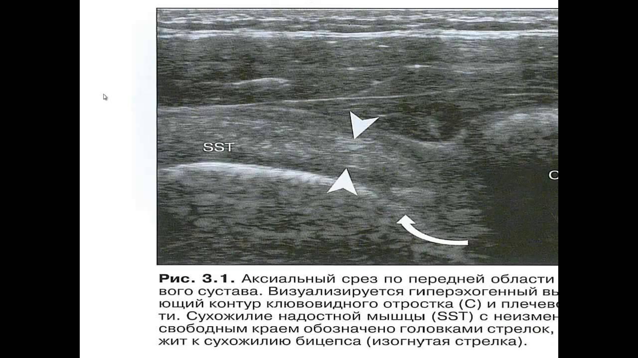 Узи суставов видео боли после операции на плечевом суставе