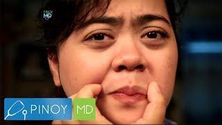 Pinoy MD: Ano ba ang mga senyales ng PCOS?
