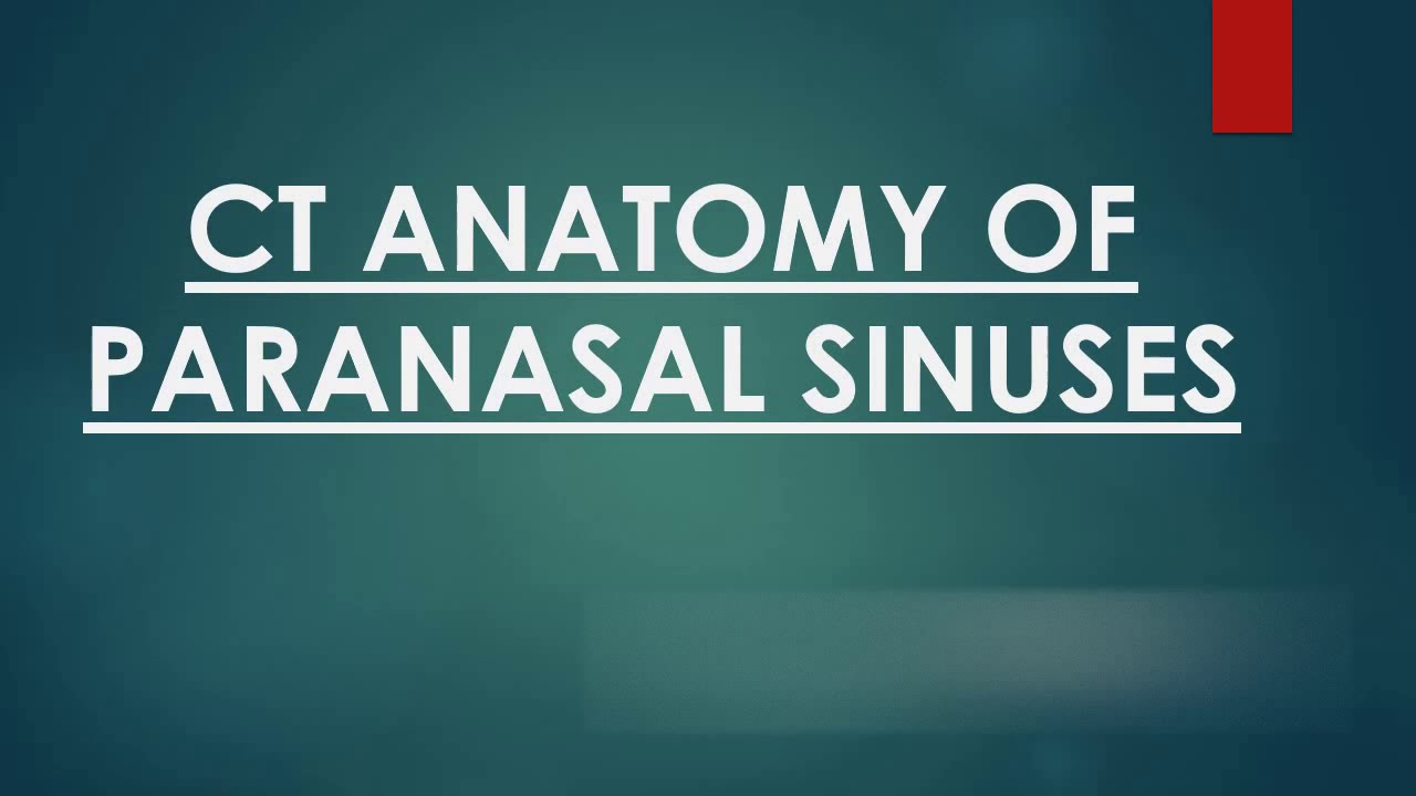 Paranasal Sinuses Ct Anatomy Youtube