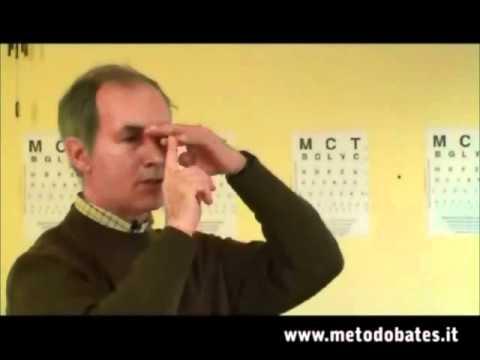 bates módszer myopia videó